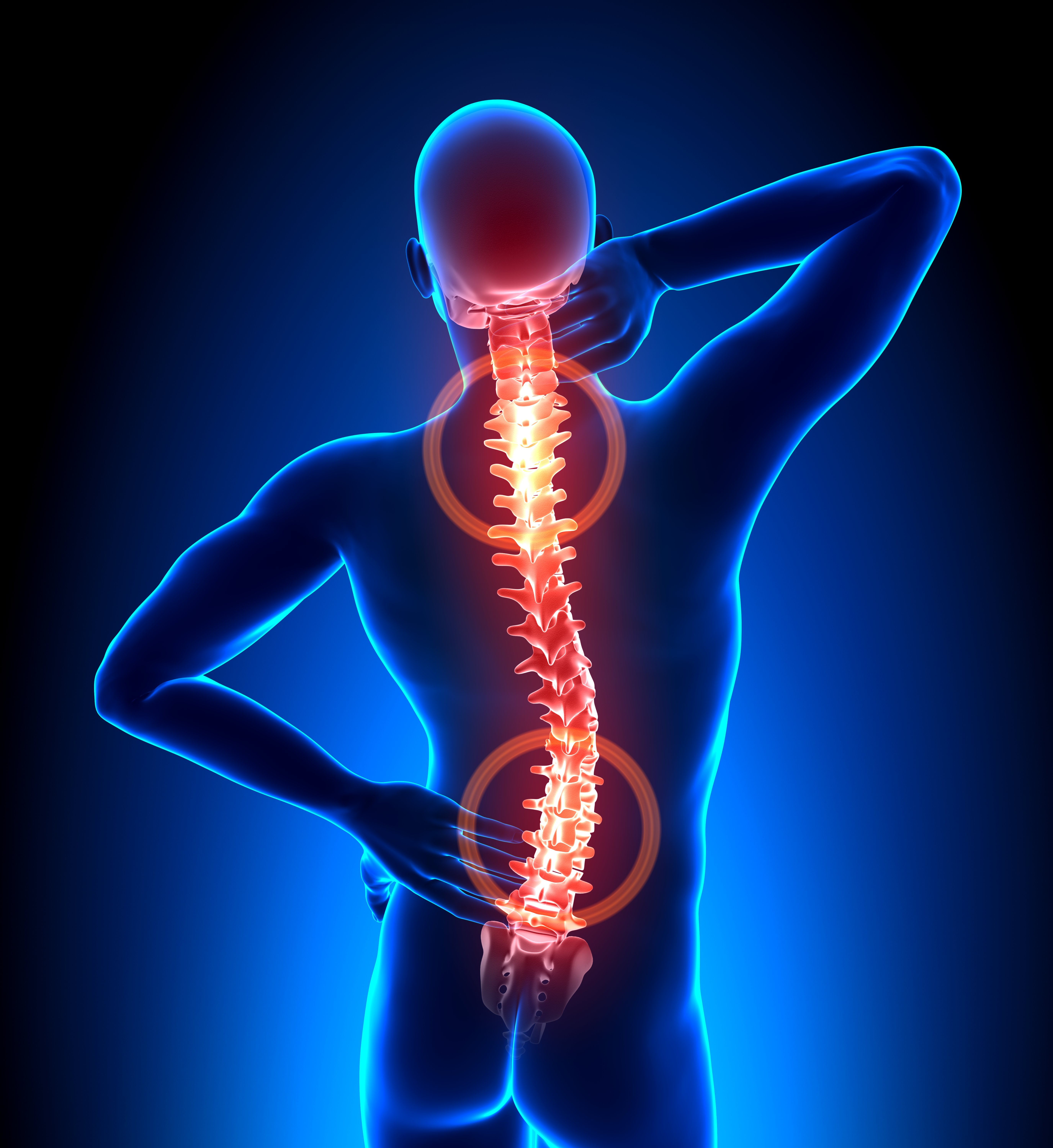 Top of spine and lower back highlighted to show where back pain can occur.