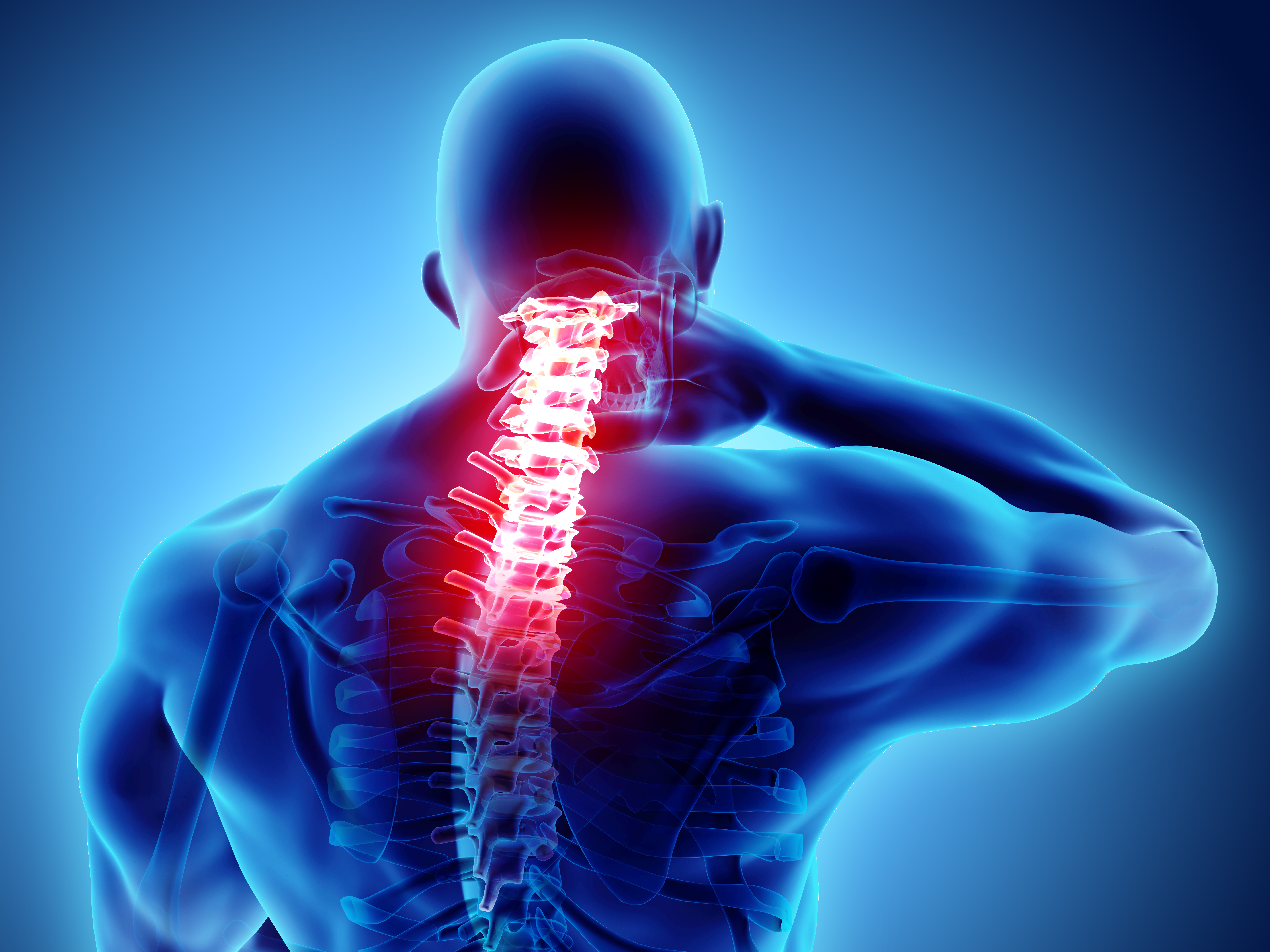Highlighted top of spine where neck pain occurs.