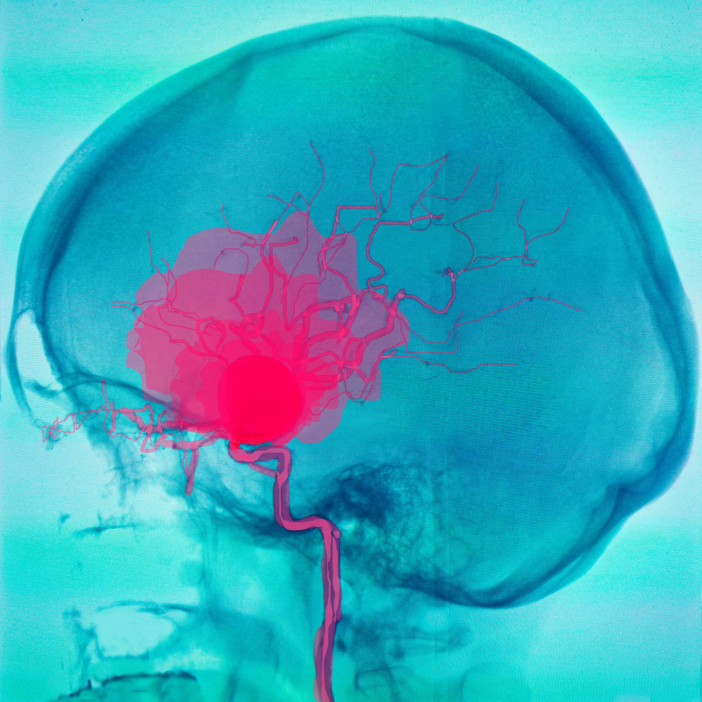 Brain aneurysm hemorrhage